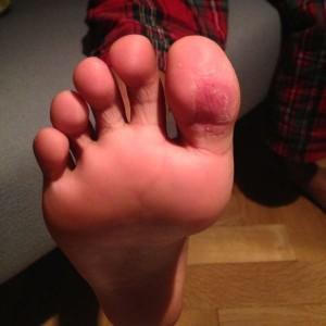 Verrucae treatment after